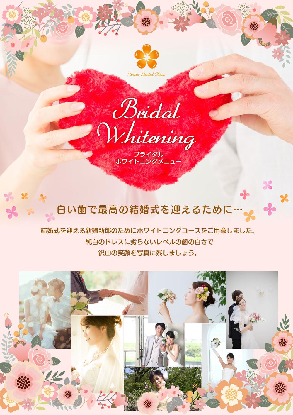 ブライダルホワイトニングメニュー登場!